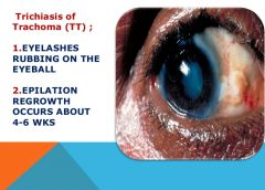 Ministry Embarks on Massive Drug Administration For Trachoma