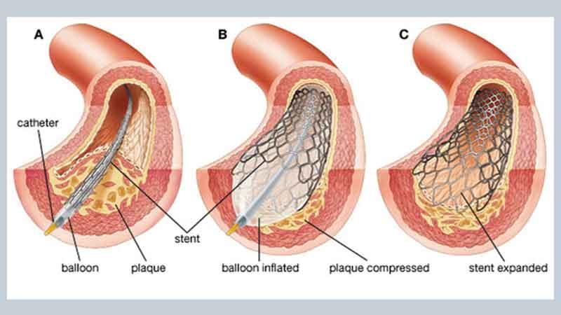 Parkview Hospital To Offer Cardiac Catheterization Health Times