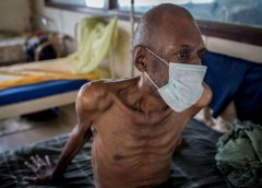 COVID-19 To Cause 1.4 Million TB Deaths